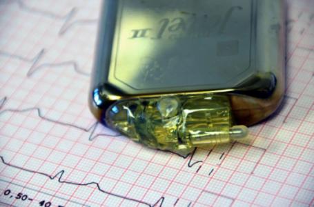 Cum a schimbat tehnologia modernă metodele de tratament pentru bolile cardiace?