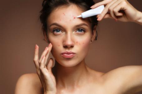 Îngrijirea corectă a tenului cu tendință acneică – sfaturi utile